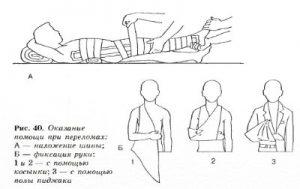 PervayaPomosh7.1 300x189 - Первая помощь ребенку в чрезвычайных ситуациях
