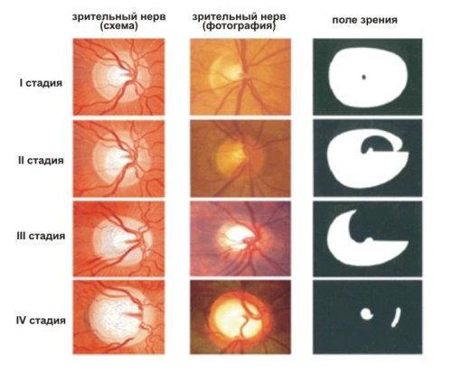 Глаукома - причина неизлечимой слепоты, поэтому важно ее не ...