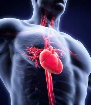 Инфаркт миокарда, общие сведения