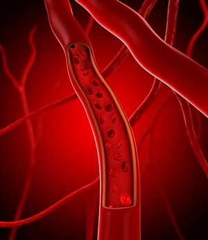 История тромболизиса