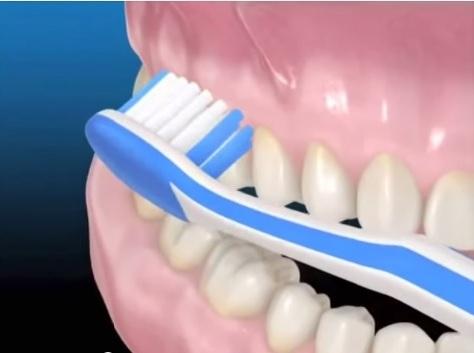 Отбелить зубы сода с перекисью