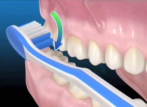 Купить лампу для отбеливания зубов киев