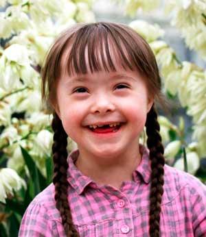Как воспитывать ребенка с синдромом Дауна?