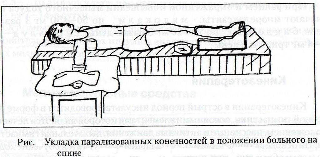 Технику укладок парализованных конечностей