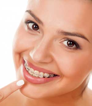 Современные методы выравнивания зубов