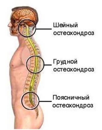 грудной остеохондроз лечение просто супер