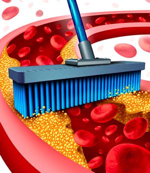 Очищение сосудов – залог здоровья и долголетия