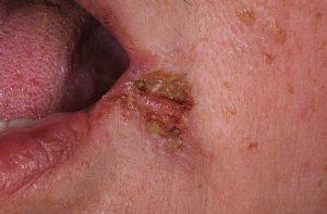 11 300x197 - Заеды, или трещинки в уголках губ: лечение, профилактика