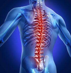 hondroz spiny 1 290x300 - ЛФК при остеохондрозе позвоночника