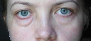343438b66 660x300 300x136 - Мешки под глазами: причины и как их убрать