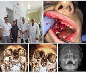 NOKVLX7D210 300x254 - Взрыв электронной сигареты во рту у подростка (+фото 18+)