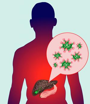 Вспышка гепатита А в Европе