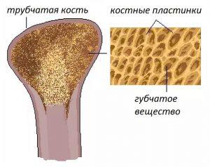 image005 2 300x238 - Остеопороз: симптомы, лечение, профилактика