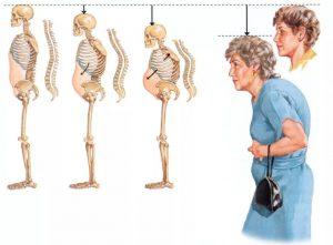 image009 3 300x221 - Остеопороз: симптомы, лечение, профилактика