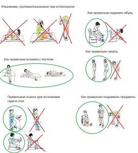 image023 271x300 - Остеопороз: симптомы, лечение, профилактика