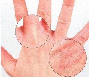 kak otlichit psoriaz ot dermatita 300x261 - Трещины на пальцах возле ногтей: причины, лечение