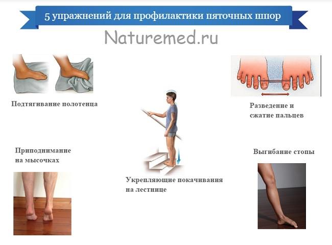 136 - Лечение пяточной шпоры