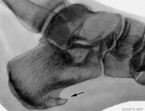 lecheniepyatochnoyshporivdomashnixuslovi 51EF0939 300x229 - Лечение пяточной шпоры