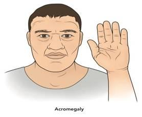 image008 - Эндокринные гипертензии: причиной повышенного давления могут быть гормоны