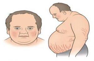 image012 300x197 - Эндокринные гипертензии: причиной повышенного давления могут быть гормоны