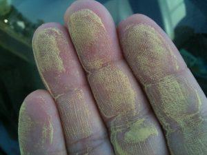 4498154629 87b1a71d8b b 300x225 - Почему сезонная аллергия становится сильнее?