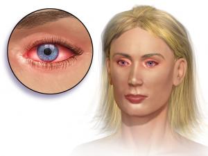 Blausen 0013 AllergicConjunctivitis 300x225 - Почему сезонная аллергия становится сильнее?