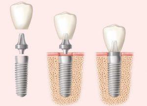 image001 2 300x217 - Зубные импланты: виды, показания, особенности