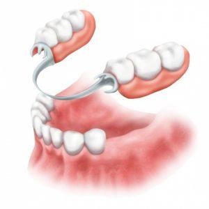 image003 2 - Зубные импланты: виды, показания, особенности