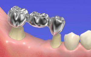 image005 2 300x186 - Зубные импланты: виды, показания, особенности