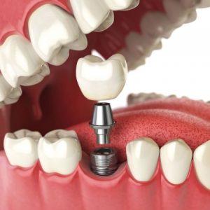 image007 2 300x300 - Зубные импланты: виды, показания, особенности