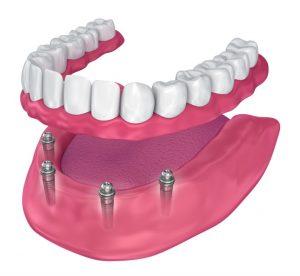 image008 2 300x276 - Зубные импланты: виды, показания, особенности