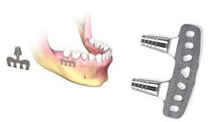 image012 1 300x176 - Зубные импланты: виды, показания, особенности