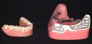 image014 300x146 - Зубные импланты: виды, показания, особенности