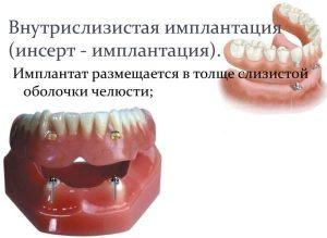 image015 300x219 - Зубные импланты: виды, показания, особенности