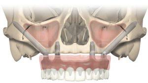 image017 300x169 - Зубные импланты: виды, показания, особенности