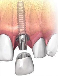 image021 230x300 - Зубные импланты: виды, показания, особенности