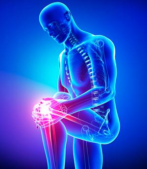 Деформирующий остеоартроз суставов — симптомы, лечение