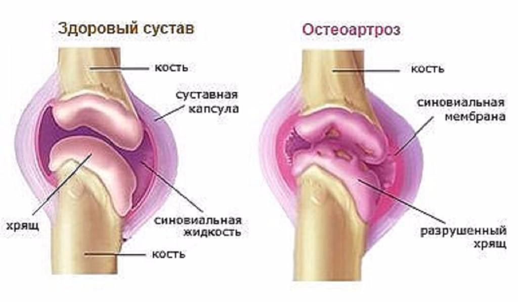 tratamentul articulațiilor genunchiului cu dimexid