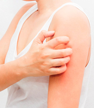 Зуд — первичная диагностика и лечение