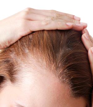 Диагностика выпадения волос. Какие анализы нужносдать?